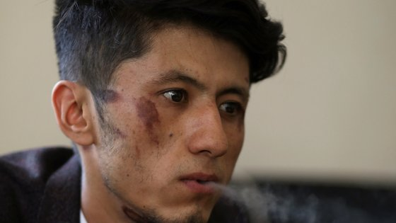〈YONHAP PHOTO-0068〉 Taqi Daryabi, a 22-year-old video editor for Etilaat Roz newspaper who was beaten by the Taliban during incarceration, smokes a cigarette with bruises on his face, at the newspaper office in Kabul, Afghanistan, September 9, 2021. WANA (West Asia News Agency) via REUTERS ATTENTION EDITORS - THIS IMAGE HAS BEEN SUPPLIED BY A THIRD PARTY./2021-09-10 00:19:03/ 〈저작권자 ⓒ 1980-2021 ㈜연합뉴스. 무단 전재 재배포 금지.〉
