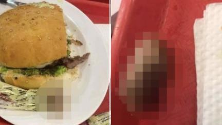 고기패티에 '오도독' 손가락이? 볼리비아 뒤집힌 햄버거 충격